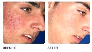 Acne Treatments Without Chemicals Or Drugs